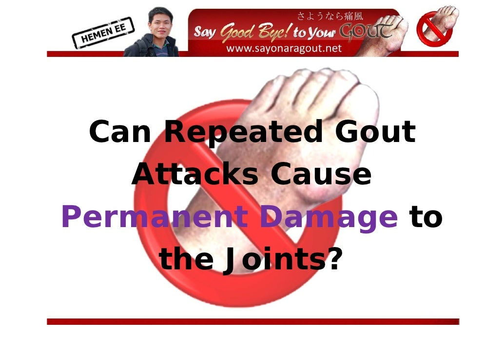 Can Repeated Gout    Attacks Cause Permanent Damage to      the Joints?                     ...