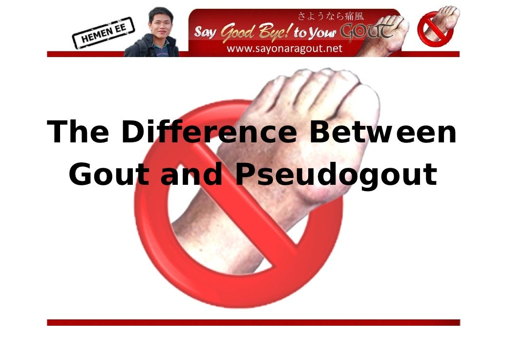 The Difference Between  Gout and Pseudogout