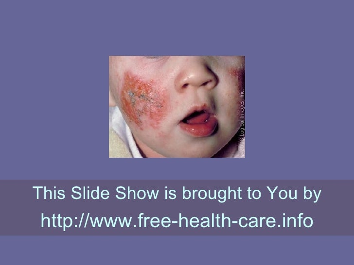 Allergic Dermatitis: Getting To Know Your Allergy