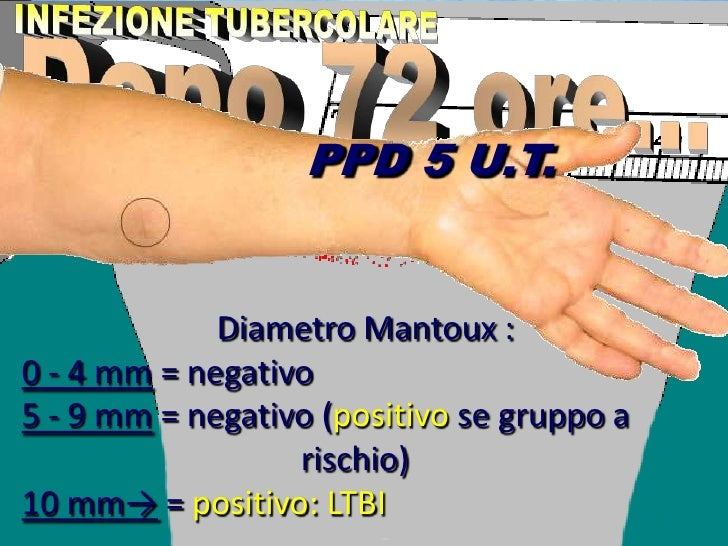 primo test hiv negativo
