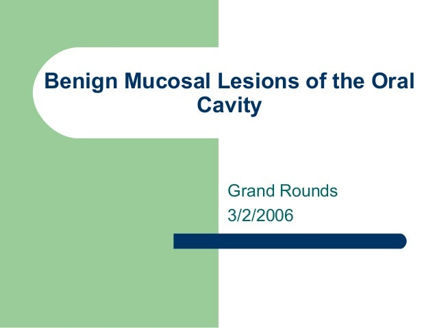 Benign Mucosal Lesions of the Oral Cavity Grand Rounds 3/2/2006