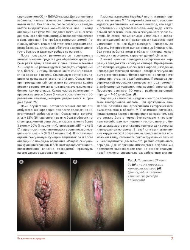 Лабиопластика фото