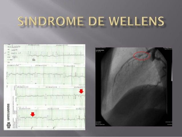  Es  un conjunto característico de alteraciones en el ECG que indican una estenosis severa en la parte proximal de la art...