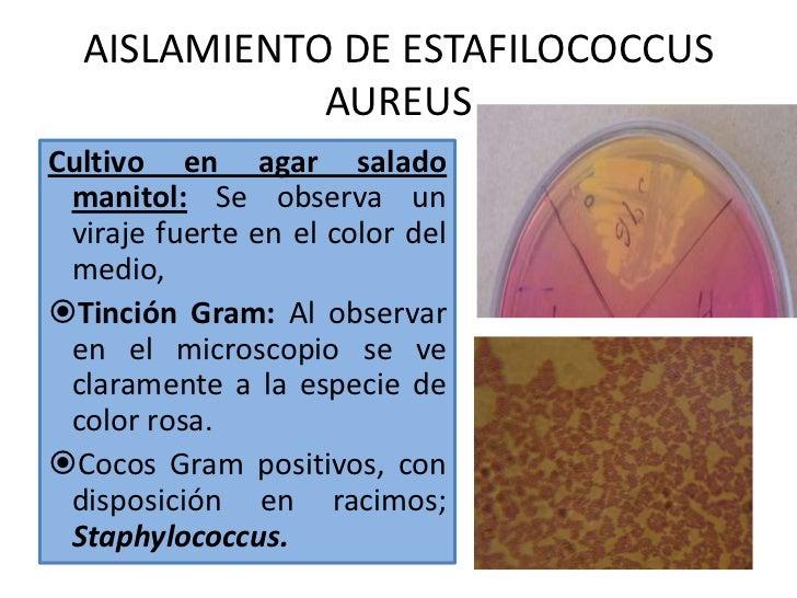 Ppt atopichesky la dermatitis
