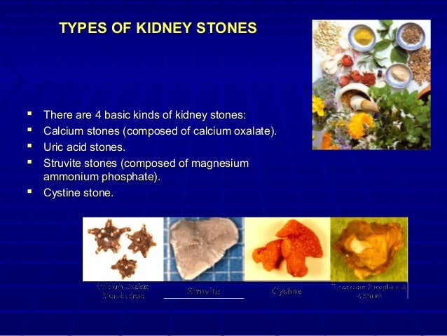 Pictures of different types of kidney stones