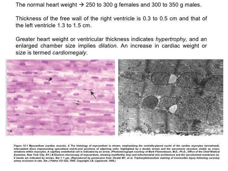 05 Cat. Cardiovascular I