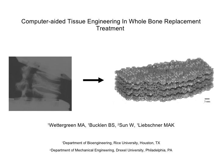 Computer-aided Tissue Engineering In Whole Bone Replacement Treatment  1 Wettergreen MA,  1 Bucklen BS,  2 Sun W,  1 Liebs...