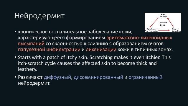 Нейродермит на лекарство