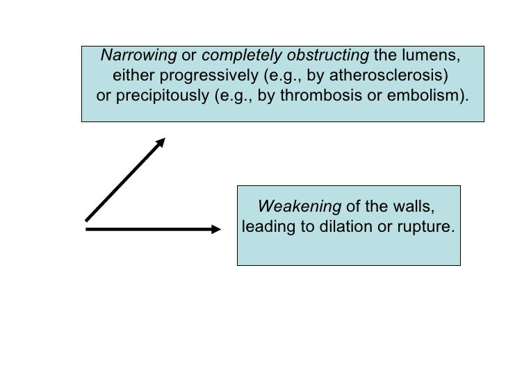 Narrowing or completely obstructing the lumens,   either progressively (e.g., by atherosclerosis) or precipitously (e.g., ...