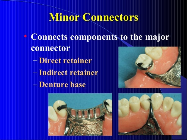 Minor Connectors • Connects components to the major connector – Direct retainer – Indirect retainer – Denture base