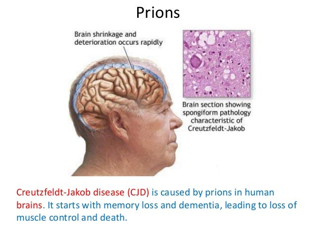 cjd disease Creutzfeldt–jakob disease (cjd) is a fatal degenerative brain disorder early symptoms include memory problems, behavioral changes, poor coordination, and visual disturbances later dementia, involuntary movements, blindness, weakness, and coma occur.