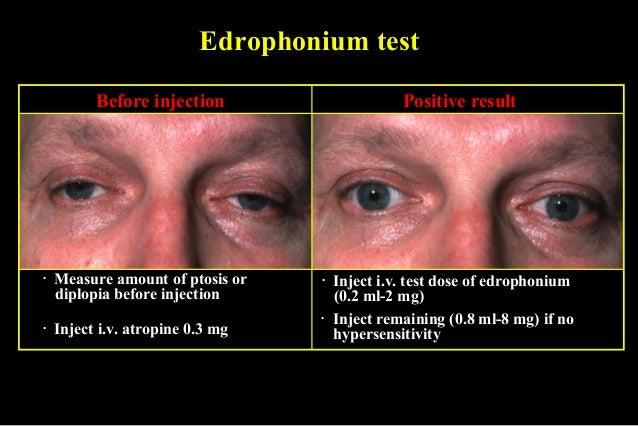 Edrophonium