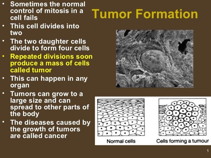 0801 tumors