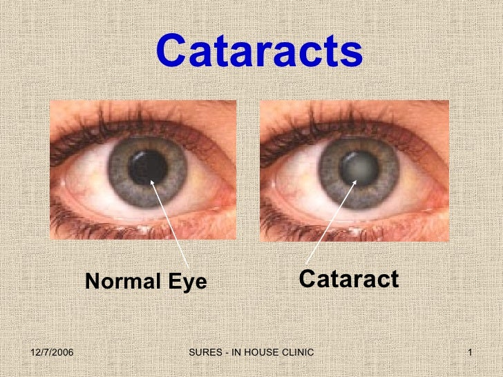 0  Eyes And  Cataract  T H