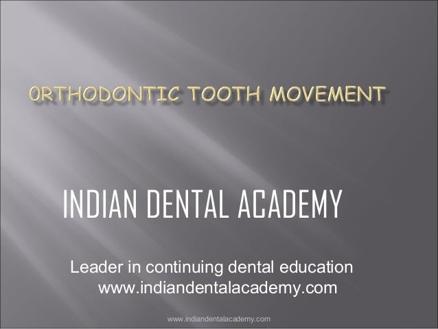 0rthodontic tooth movement /certified fixed orthodontic courses by Indian dental academy
