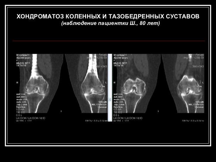 Хондроматоз суставов