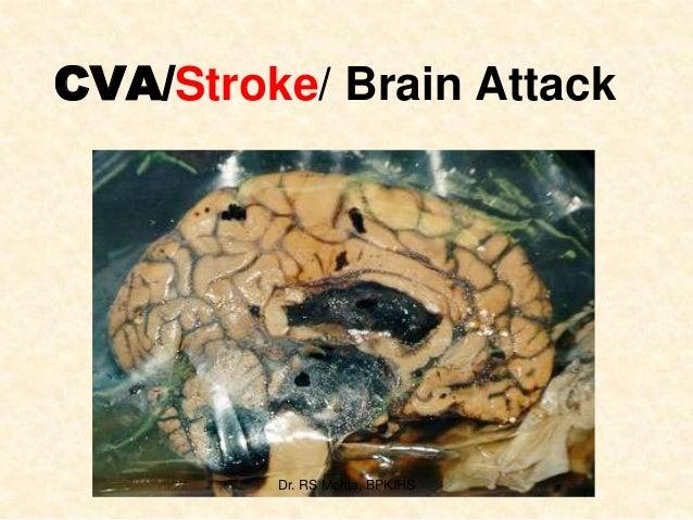 1.  cva or stroke