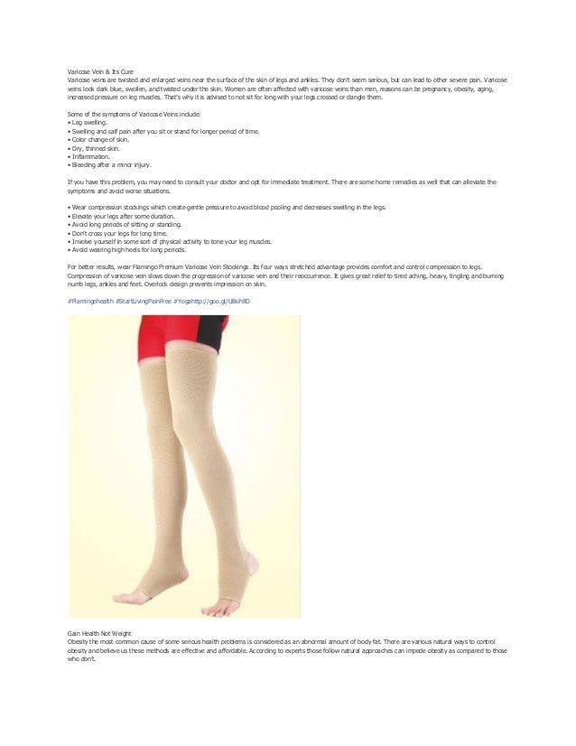 Varicose Vein & Its Cure Varicose veins are twisted and enlarged veins near the surface of the skin of legs and ankles. Th...