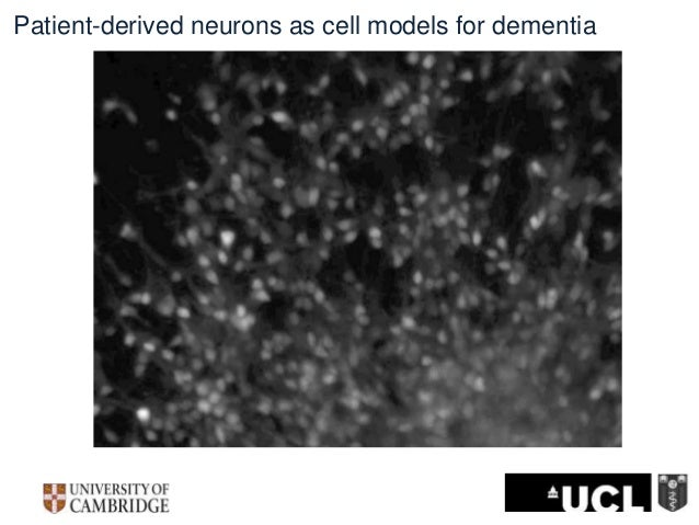 Patient-derived neurons as cell models for dementia