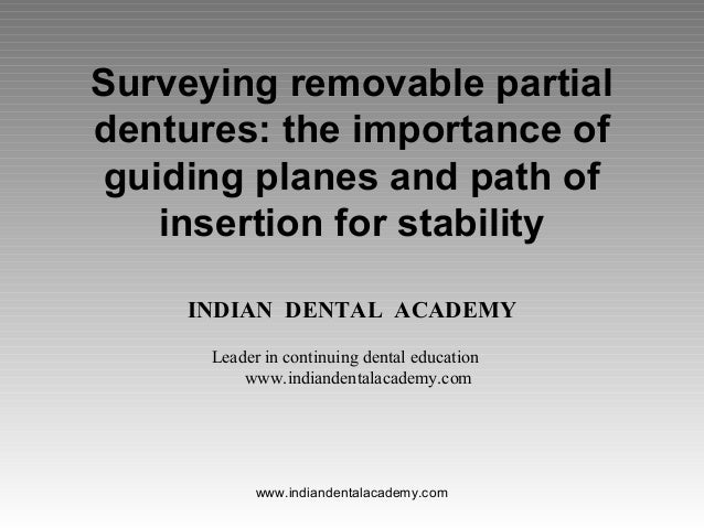 Surveying removable partial dentures: the importance of guiding planes and path of insertion for stability INDIAN DENTAL A...