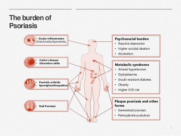 Palabras clave: psoriasis, fototerapia, PUVA 1