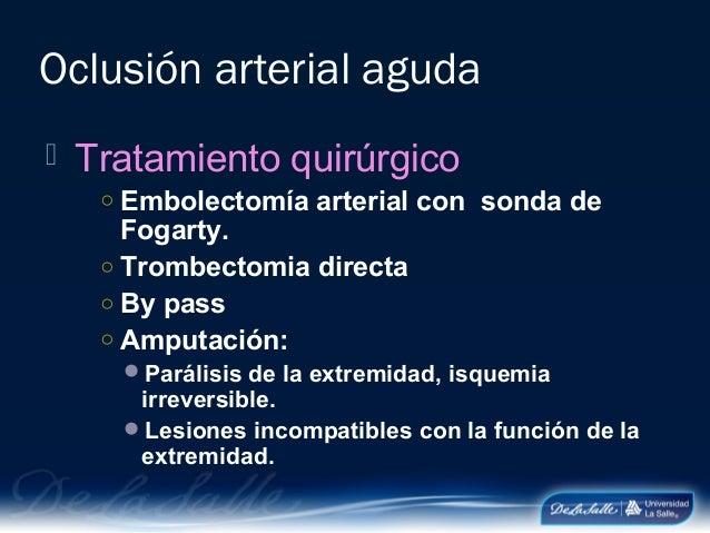 La várice varicosa los síntomas los hinchazones