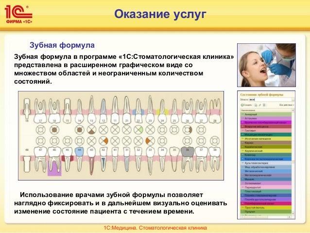 Зубная формула Зубная формула