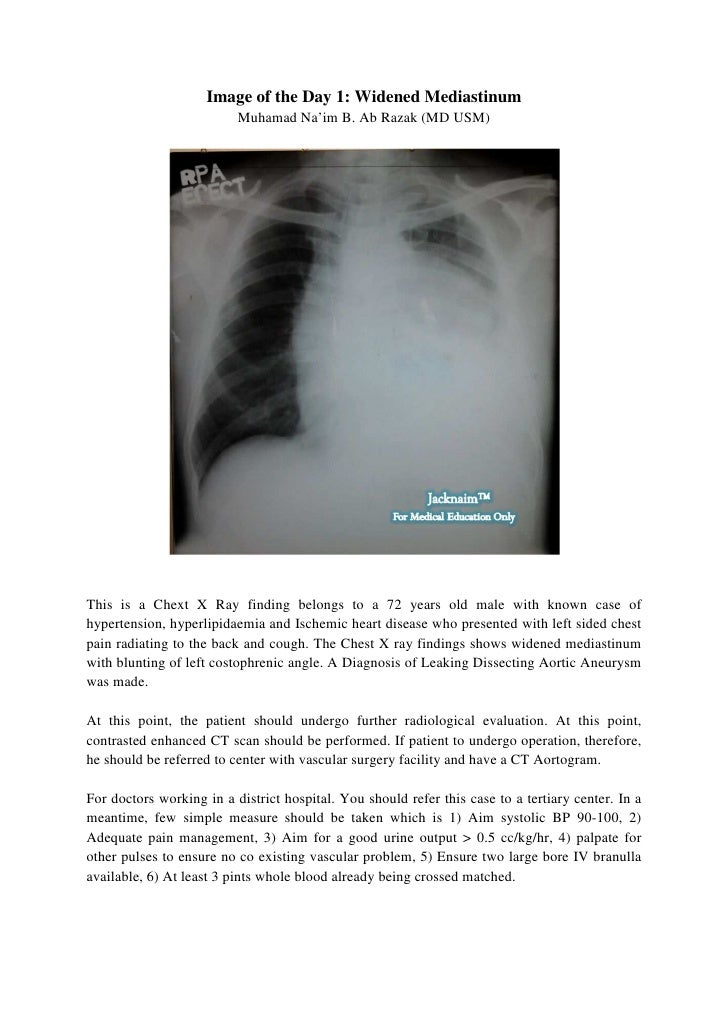 Image of the Day 1: Widened Mediastinum                          Muhamad Na'im B. Ab Razak (MD USM)This is a Chext X Ray f...