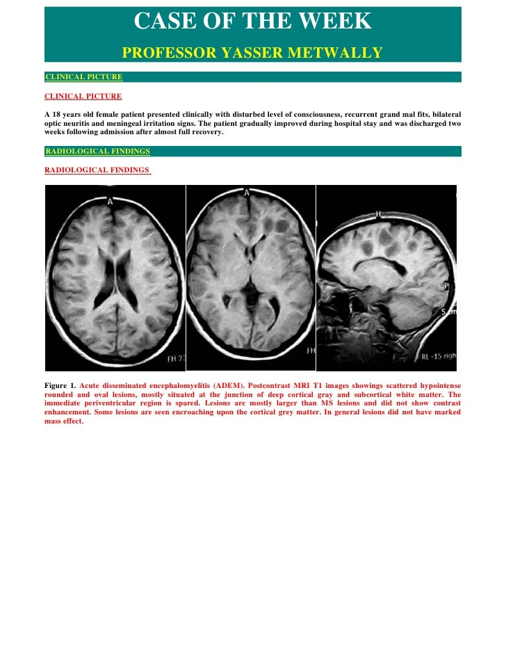 CASE OF THE WEEK                        PROFESSOR YASSER METWALLY CLINICAL PICTURE  CLINICAL PICTURE  A 18 years old femal...