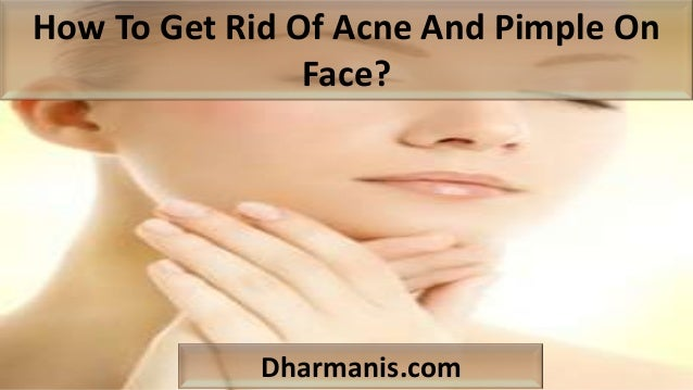How To Get Rid Of Acne And Pimple On Face? Dharmanis.com