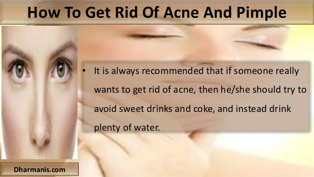 how to get rid of acne on face naturally
