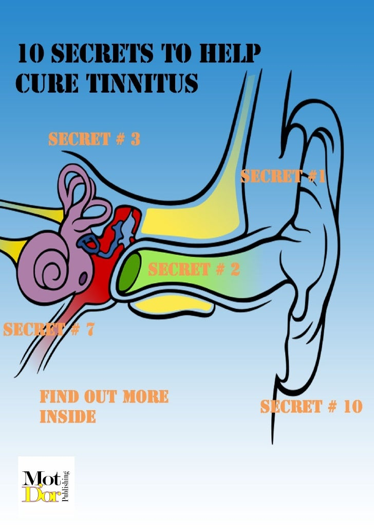 10 Secrets to Help Cure Tinnitus   Here are 10 tips taken from many that you'll find in the new book on tinnitus cures cal...
