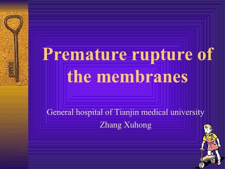 Premature rupture of the membranes <ul><li>General hospital of Tianjin medical university </li></ul><ul><li>Zhang Xuhong <...