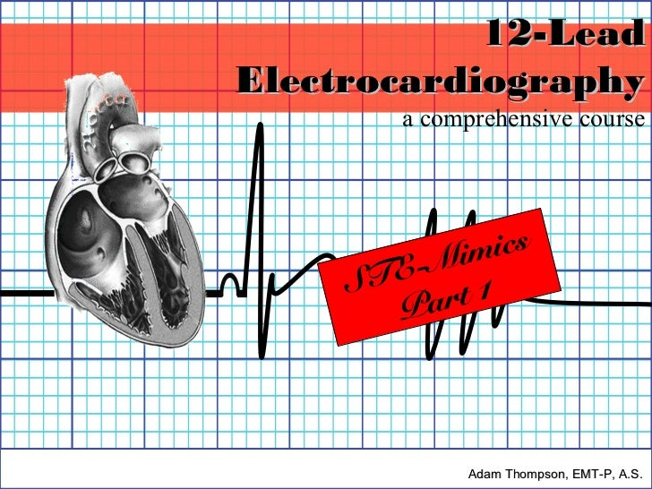 12-LeadElectrocardiography        a comprehensive course        -Mi mics     STE       Pa rt 1             Adam Thompson, ...