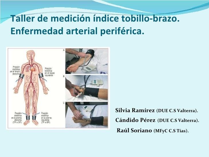 Taller de medición índice tobillo-brazo. Enfermedad arterial periférica. <ul><li>  Silvia Ramírez  (DUE C.S Valterra). </l...