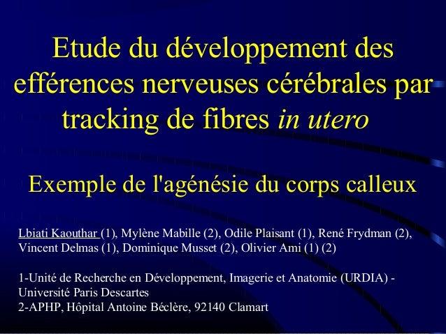Etude du développement des efférences nerveuses cérébrales par tracking de fibres in utero Exemple de l'agénésie du corps ...