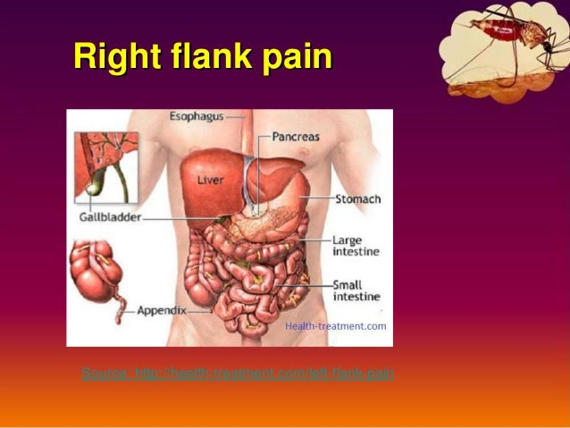 lower back pain flank pain x--x 2017, Skeleton
