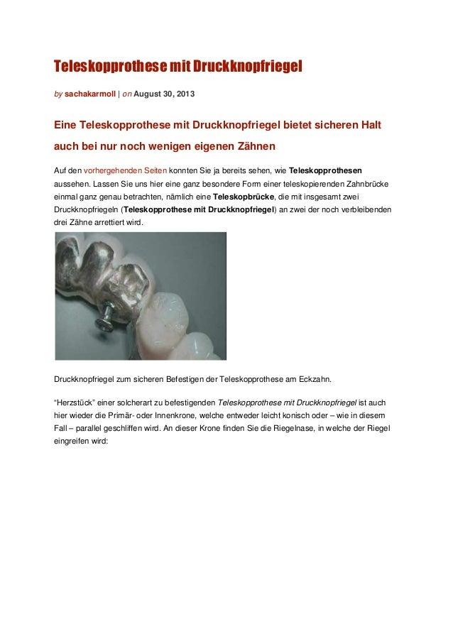 Teleskopprothese mit Druckknopfriegel by sachakarmoll | on August 30, 2013 Eine Teleskopprothese mit Druckknopfriegel biet...