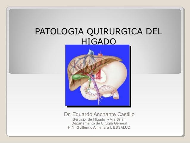PATOLOGIA QUIRURGICA DEL HIGADO  Dr. Eduardo Anchante Castillo Servicio de Hígado y Vía Biliar Departamento de Cirugía Gen...