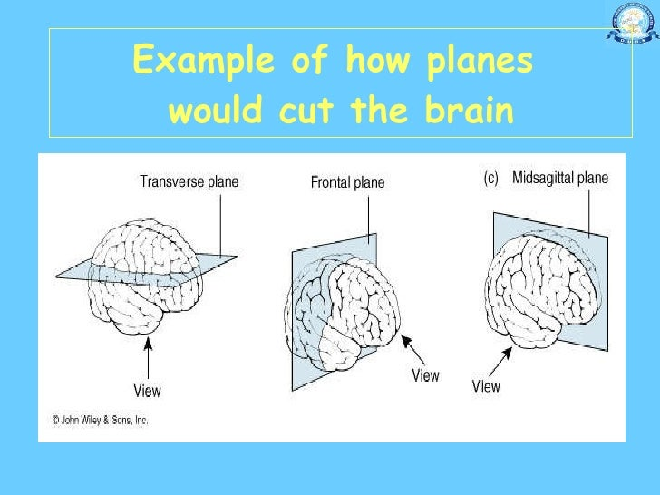 Ushas Anatomy Notes further Planes Of The Brain KtvTMtyUDGpQmVvAlxDl53nwcXwSvEpxhuF9 7CQO3eoI furthermore 5777804 in addition Diagram Body Areas moreover Anatomy Of Spine. on anatomy body planes and sections