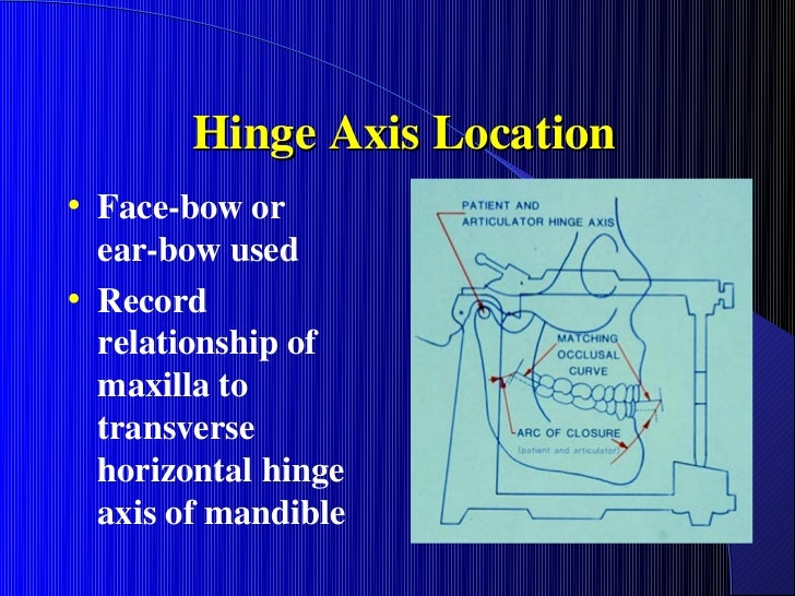 Hinge Axis Location• Face-bow or  ear-bow used• Record  relationship of  maxilla to  transverse  horizontal hinge  axis of...