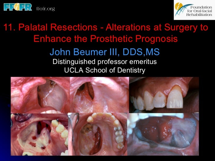 11. Palatal Resections - Alterations at Surgery to       Enhance the Prosthetic Prognosis            John Beumer III, DDS,...