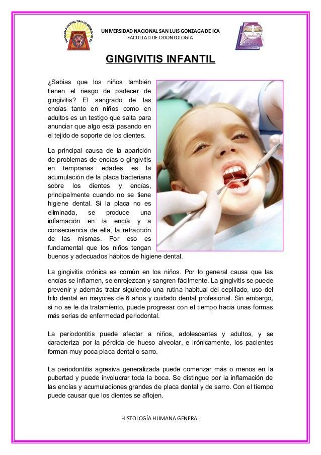 UNIVERSIDAD NACIONAL SAN LUIS GONZAGA DE ICA FACULTAD DE ODONTOLOGÍA  GINGIVITIS INFANTIL ¿Sabias que los niños también ti...