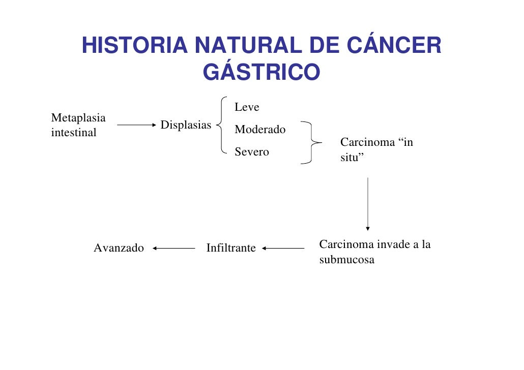 Cancer Gastrico Sintomas Y Signos | cancer gastrico