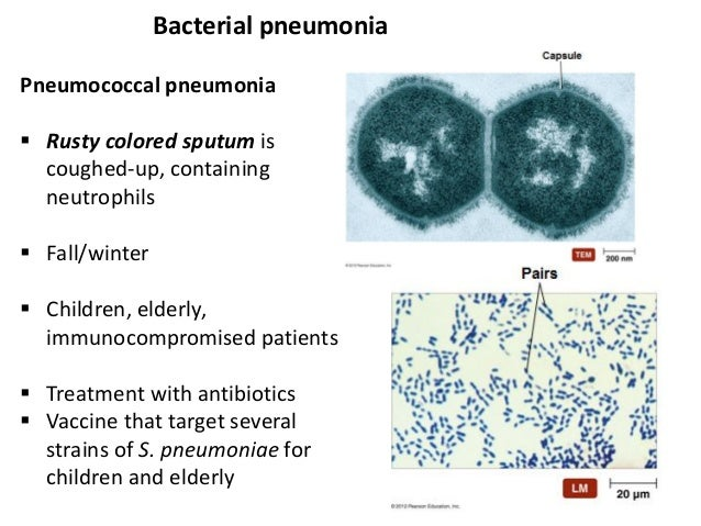 diseases of respiratory system pneumonia biology essay Structure and function of the lungs mat  resistance to the passage of air within the respiratory system  the whole essay and download the pdf for.