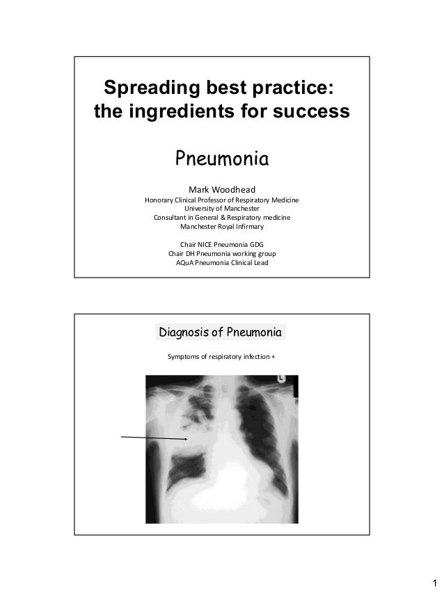 Spreading best practice:the ingredients for success               Pneumonia                   Mark Woodhead     Honorary C...