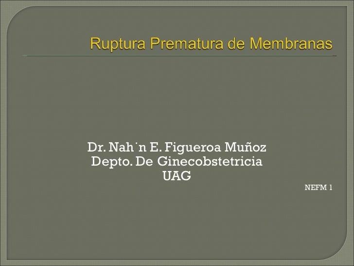 11 ruptura prematura_de_membranas