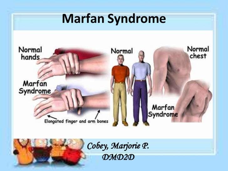 Marfan Syndrome   Cobey, Marjorie P.       DMD2D