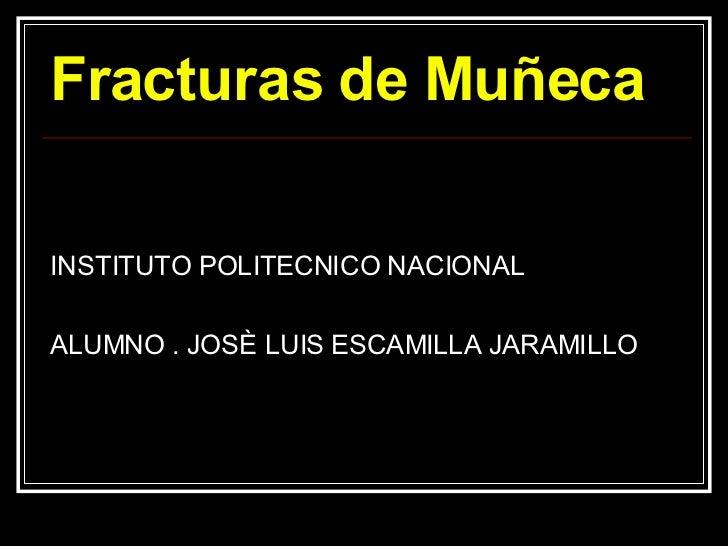 Fracturas de Muñeca <ul><li>INSTITUTO POLITECNICO NACIONAL  </li></ul><ul><li>ALUMNO . JOSÈ LUIS ESCAMILLA JARAMILLO  </li...