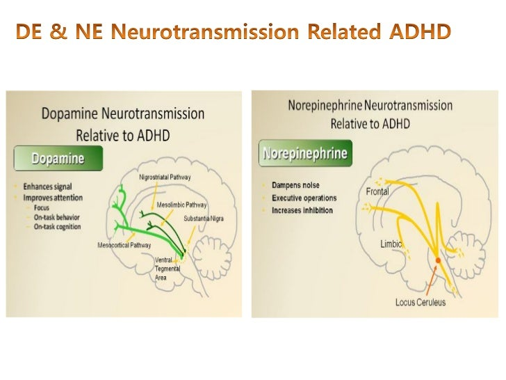 the pathophysiology of adhd 2017-08-14 attention deficit hyperactivity disorder (adhd), or attention deficit disorder (add), is a syndrome characterized by degrees of inattention, impulsive behavior, and hyperactivity.